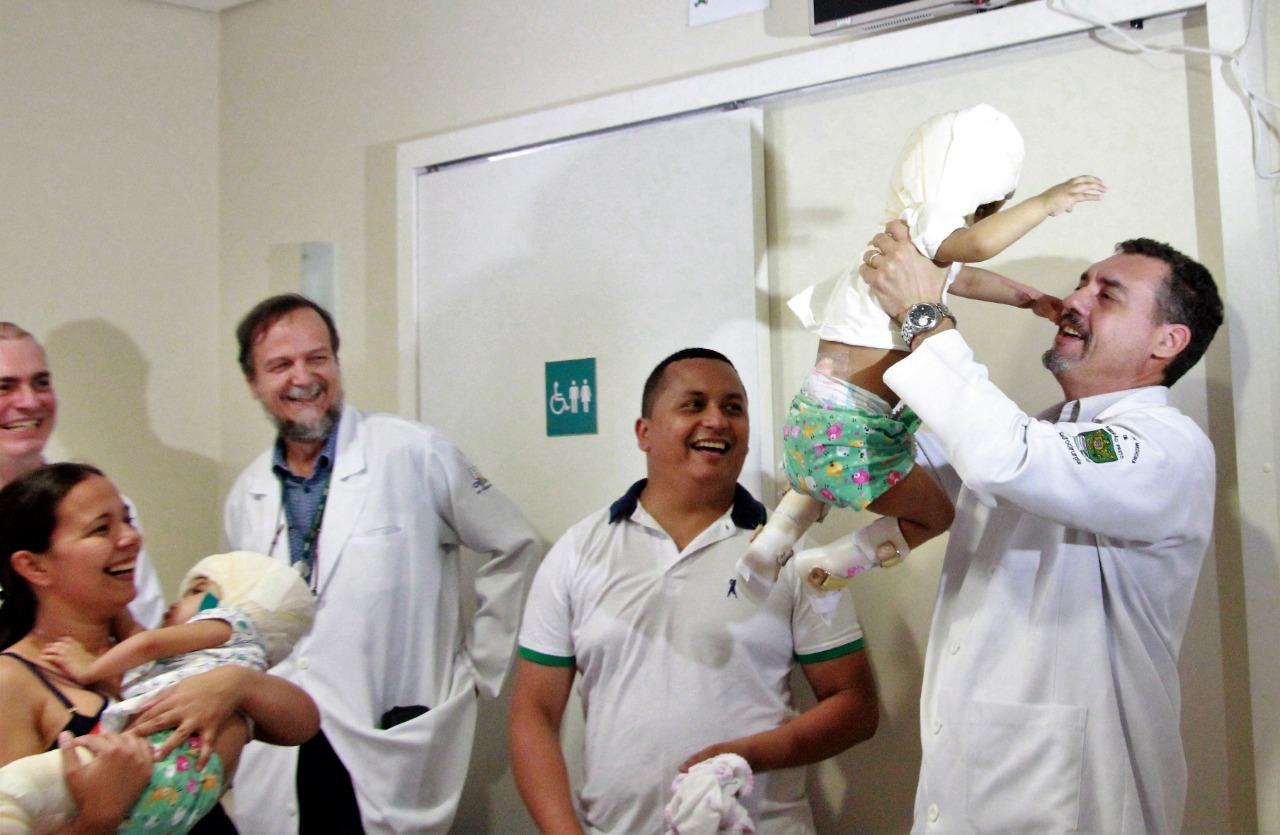 Siamesas unidas pelo crânio Hospital das Clínicas